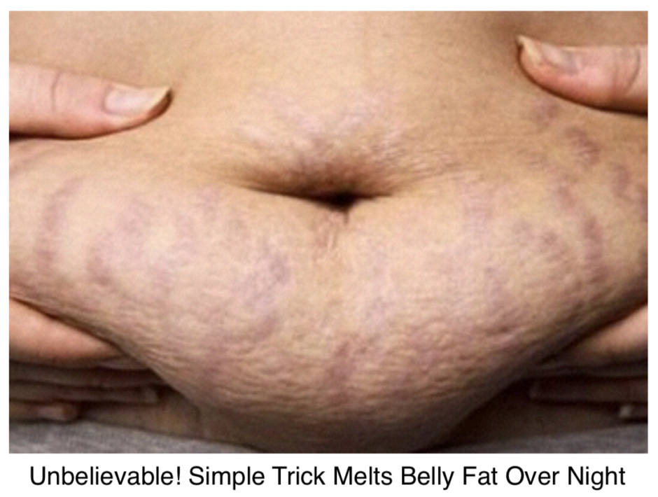Advertorial Example #2 - The Fat Diminisher